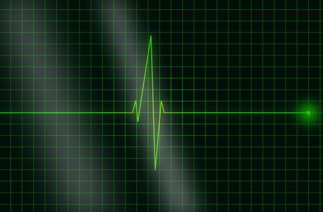 newcardiac.JPG