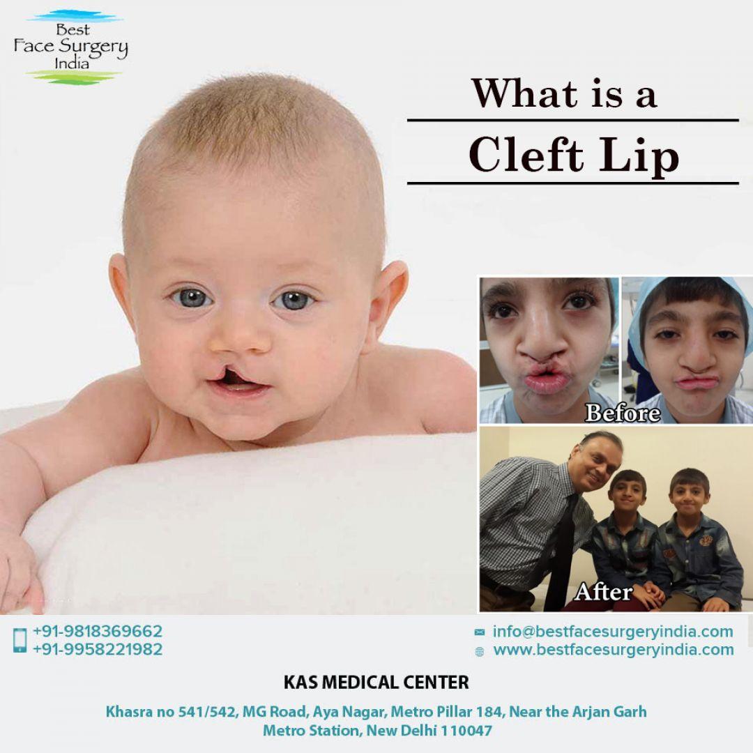 newcleft+lip+surgery.jpg
