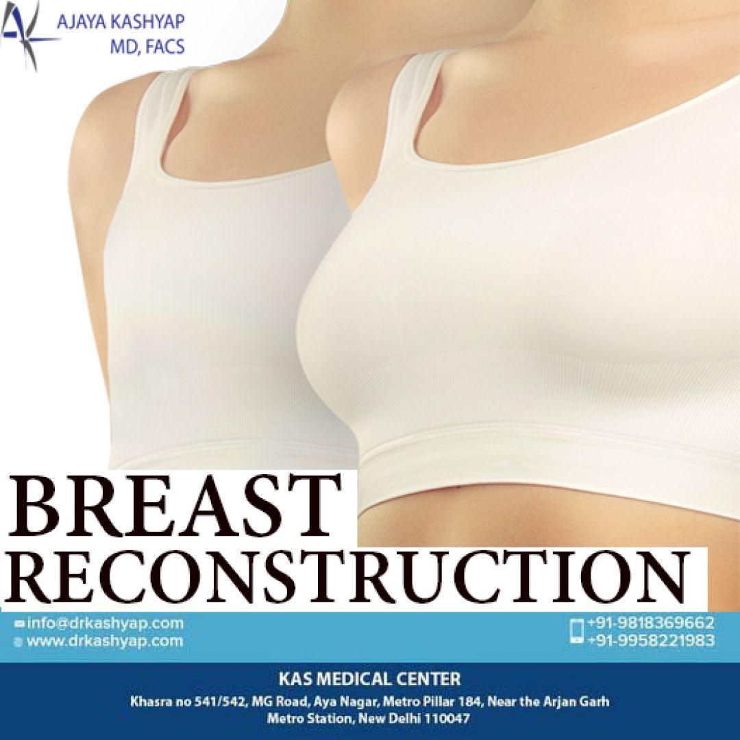 newbreast+reconstruction+surgery+india.jpg