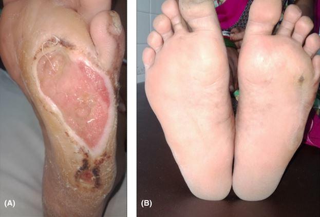 newleprosy.JPG