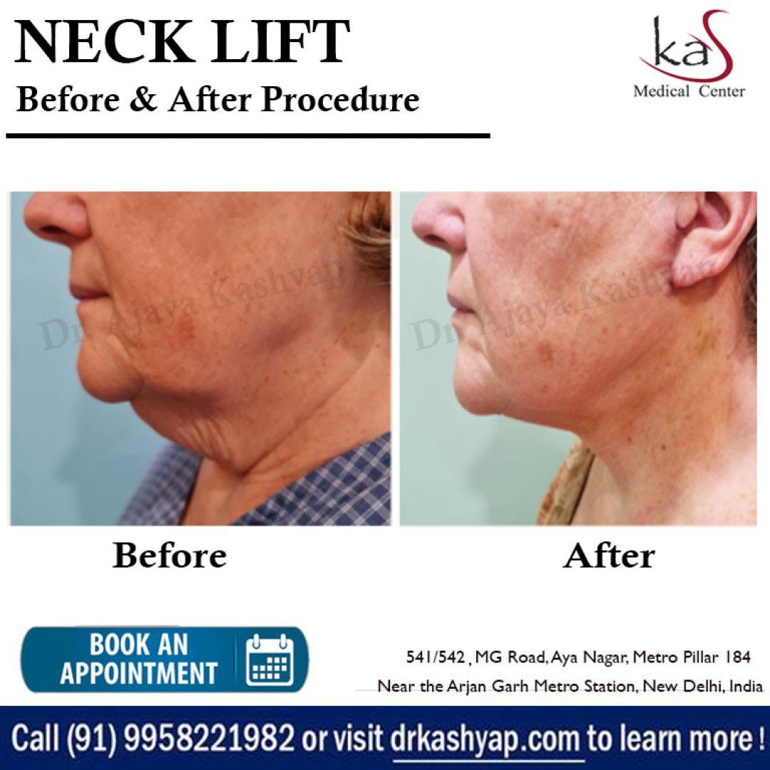 newneck+lift+surgery+in+delhi.jpg