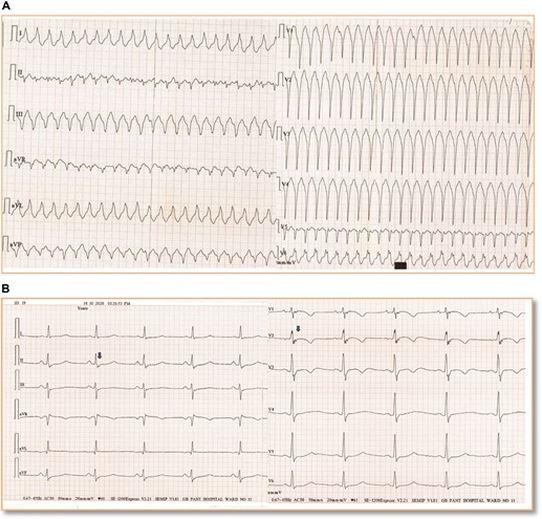 newcardiomyopathy.JPG