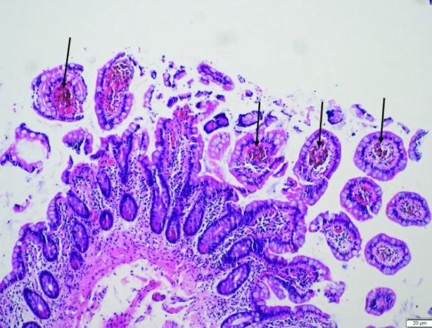 newmelanosis.JPG